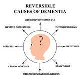 Causes réversibles de démence sénile La maladie du ` s d'Alzheimer Infographie Illustration de vecteur sur le fond d'isolement illustration stock