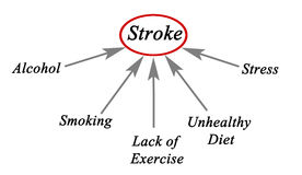 Causes of Stroke. Most important Causes of Stroke Royalty Free Stock Photography