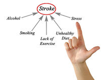 Causes of Stroke. Presenting diagram of Causes of Stroke Royalty Free Stock Photo