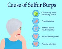 Causes of Sulfur Burps Stock Image