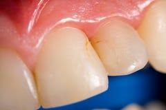 Cavidad dental Imagenes de archivo