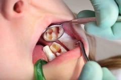 Cavidade dental fotografia de stock