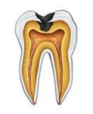 Cavidade do dente Fotografia de Stock Royalty Free