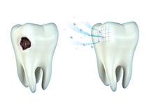 Cavidade dos dentes Fotografia de Stock Royalty Free