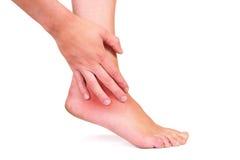 Caviglia danneggiata Fotografie Stock Libere da Diritti