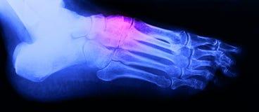Caviglia del piede destro Fotografia Stock