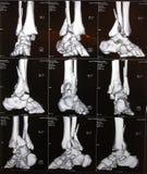 Caviglia di destra CT fotografia stock libera da diritti