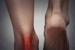 Caviglia dolorosa con il punto rosso sul piede della donna Fotografia Stock