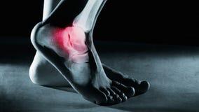 Caviglia e gamba del piede umano nei raggi x, su fondo grigio illustrazione di stock