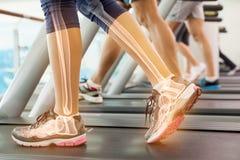 Caviglia evidenziata della donna sulla pedana mobile Immagini Stock Libere da Diritti
