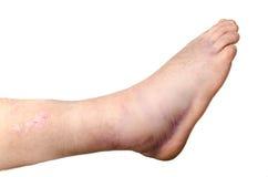 Caviglia rotta Immagine Stock