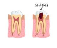 Cavités de dents Images libres de droits