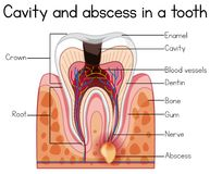 Cavity and Abscess in a Tooth. Illustration vector illustration