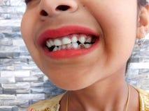 Cavity. In children stock image