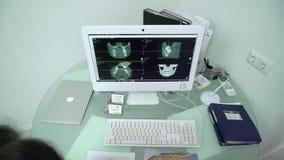 CC$PETERSBURG ROSJA, SIERPIEŃ, - 30, 2018: Promieniowanie rentgenowskie na monitorze przy stomatologiczną kliniką zbiory