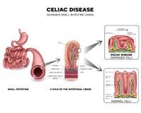 Celiac choroba ilustracji