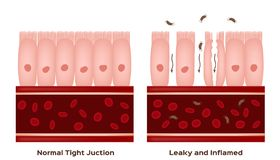 Celiac choroby Małego jelita futrówki szkoda dobrzy i uszkadzający villi przeciekająca żyłki progresja royalty ilustracja