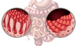 Celiac Coeliac заболевание кишечника иллюстрация штока