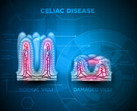 Celiac disease. Affected small intestine villi. Healthy villi and unhealthy villi with damaged cells on a blue technology background Royalty Free Stock Images