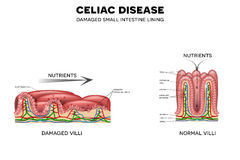 Celiac disease. Affected small intestine villi. Unhealthy villi with damaged cells and healthy villi. Intestinal villi do not absorb nutrients because of Stock Images