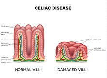 Celiac disease. Affected small intestine villi on a white background. Healthy villi and unhealthy villi with damaged cells Stock Images