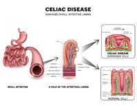 Celiac disease. Detailed anatomy, healthy intestinal villi and damaged unhealthy villi. Intestinal villi do not absorb nutrients because of reduced surface area Stock Images