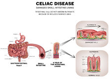 Celiac disease. Gastrointestinal tract anatomy and Celiac disease affected small intestine villi. Unhealthy villi with damaged cells and healthy villi Stock Images