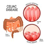 Celiac disease. small intestinal with normal villi, and villous. Atrophy. Diagram showing changes in intestinal. coeliac disease manifested by blunting of villi Stock Photo