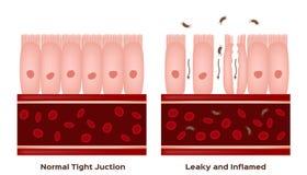 Free Celiac Disease Small Intestine Lining Damage. Good And Damaged Villi . Leaky Gut Progression Stock Image - 137775111