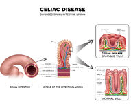 Celiac disease Small intestine lining damage. Healthy villi and damaged villi. Small intestine, a fold of the intestinal lining and villi Royalty Free Stock Photography