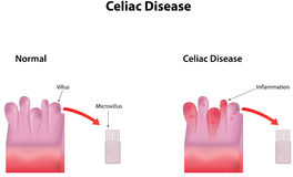 Celiac Disease. A very serious guy disease Stock Photography
