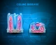 Celiac sjukdom stock illustrationer