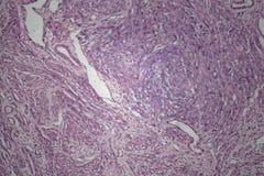 Celler av det mänskliga livmodersilkespappret med oförargliga tumörceller Arkivbild