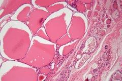 Celler av en mänsklig sköldkörtel med bulnad under ett mikroskop arkivbild