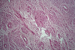 Cells of a human uterus with uterine fibroids. Under the microscope royalty free stock photography