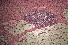 Cellule di tumore dello stomaco sotto il microscopio Fotografia Stock Libera da Diritti