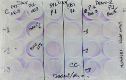 Cellule infettate virus sperimentale di incubazione del piatto Immagine Stock Libera da Diritti