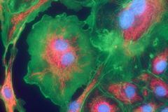 Cellules de fibroblaste mpressionistic Images libres de droits