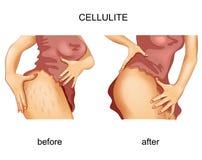 Cellulite σε έναν μηρό γυναικών s ελεύθερη απεικόνιση δικαιώματος