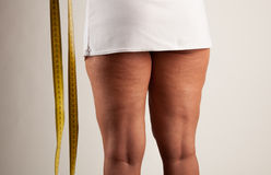 Cellulite στο νέο κορίτσι Στοκ εικόνα με δικαίωμα ελεύθερης χρήσης