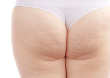 Cellulite Stock Photos