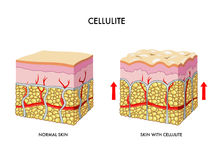 Cellulite. Medical illustration of the formation of cellulite Royalty Free Stock Photography