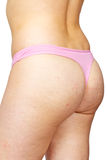 Cellulite Stock Images