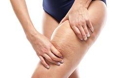 Cellulite auf weiblichen Beinen lizenzfreie stockbilder