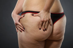 Cellulite - bad skin condition Royalty Free Stock Image