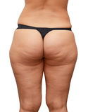 Cellulite buttocks Stock Photo