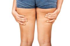 Cellulite einer Jugendlichen stockbild