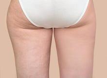 Cellulite för kvinna före och efter arkivfoton