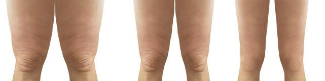 Cellulite Female Legs Before After Losing Weight Liposuction Stock Photo Image Of Beauty Perfect 166775272