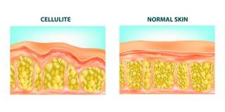 Cellulite formation. vector illustration